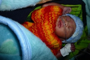 Born by C-section, this preemie was kept warm with water bottle and gloves filled with warm water.